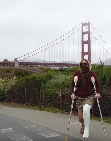 I Broke My Leg in San Francisco (Part 1 of 3)