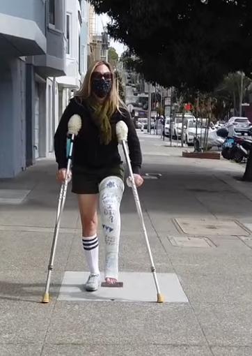 I Broke My Leg in San Francisco (Part 2 of 3)