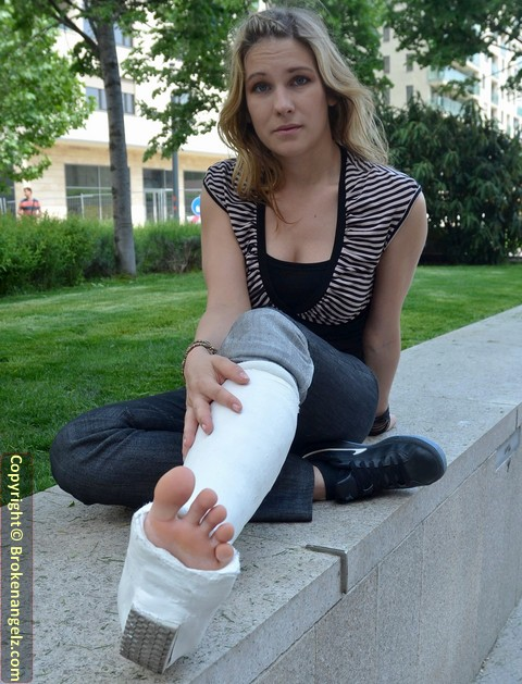 Beatrice plaster SLWC (Casted Foot Play) - Pix & Clip