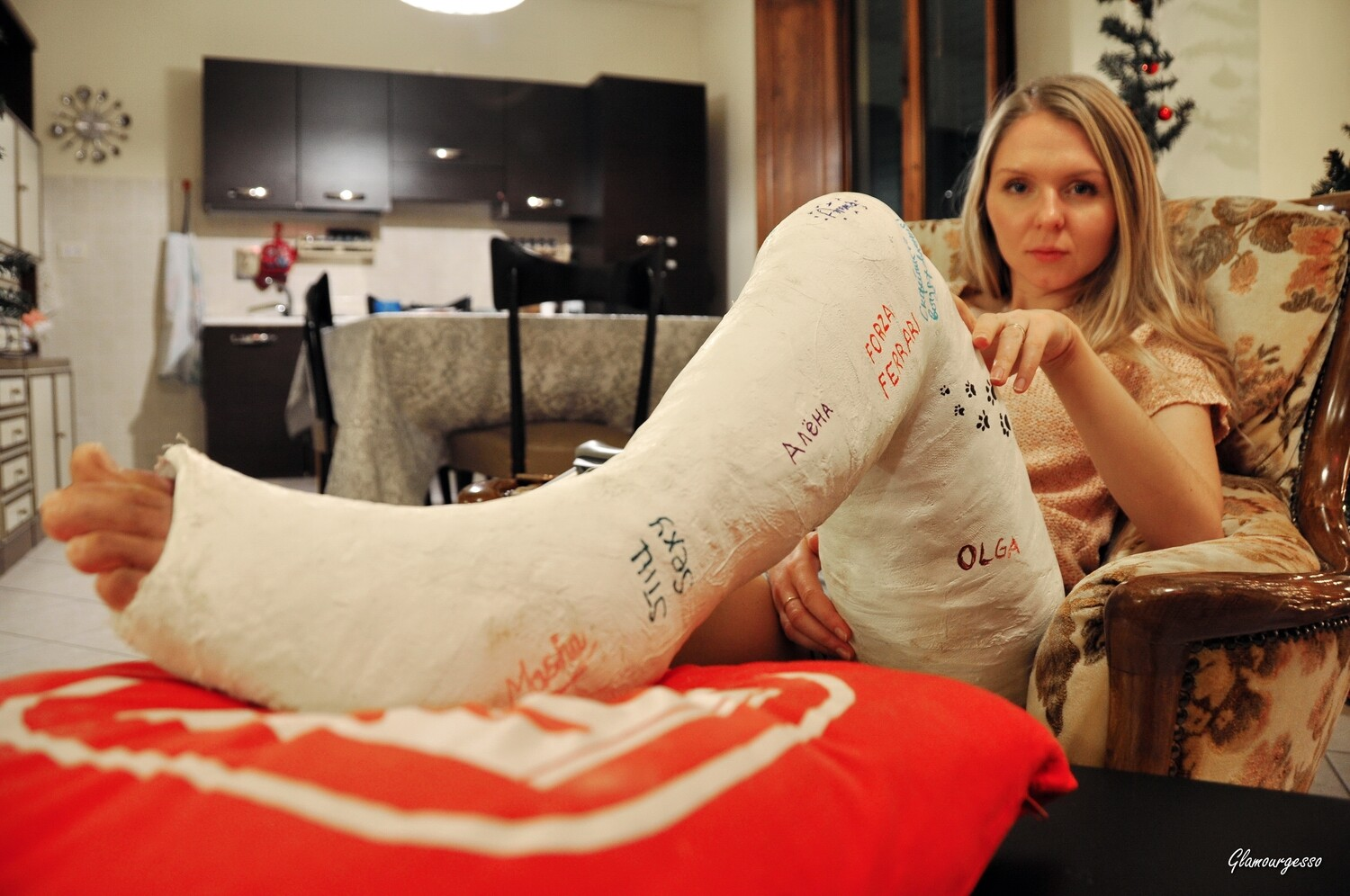 Ukrainian professional model Svitlana wears her severely ankle bent LLC. She seduces you with impressive close ups on her bent ankle, and talking about her feelings beeing in her huge and angled cast.