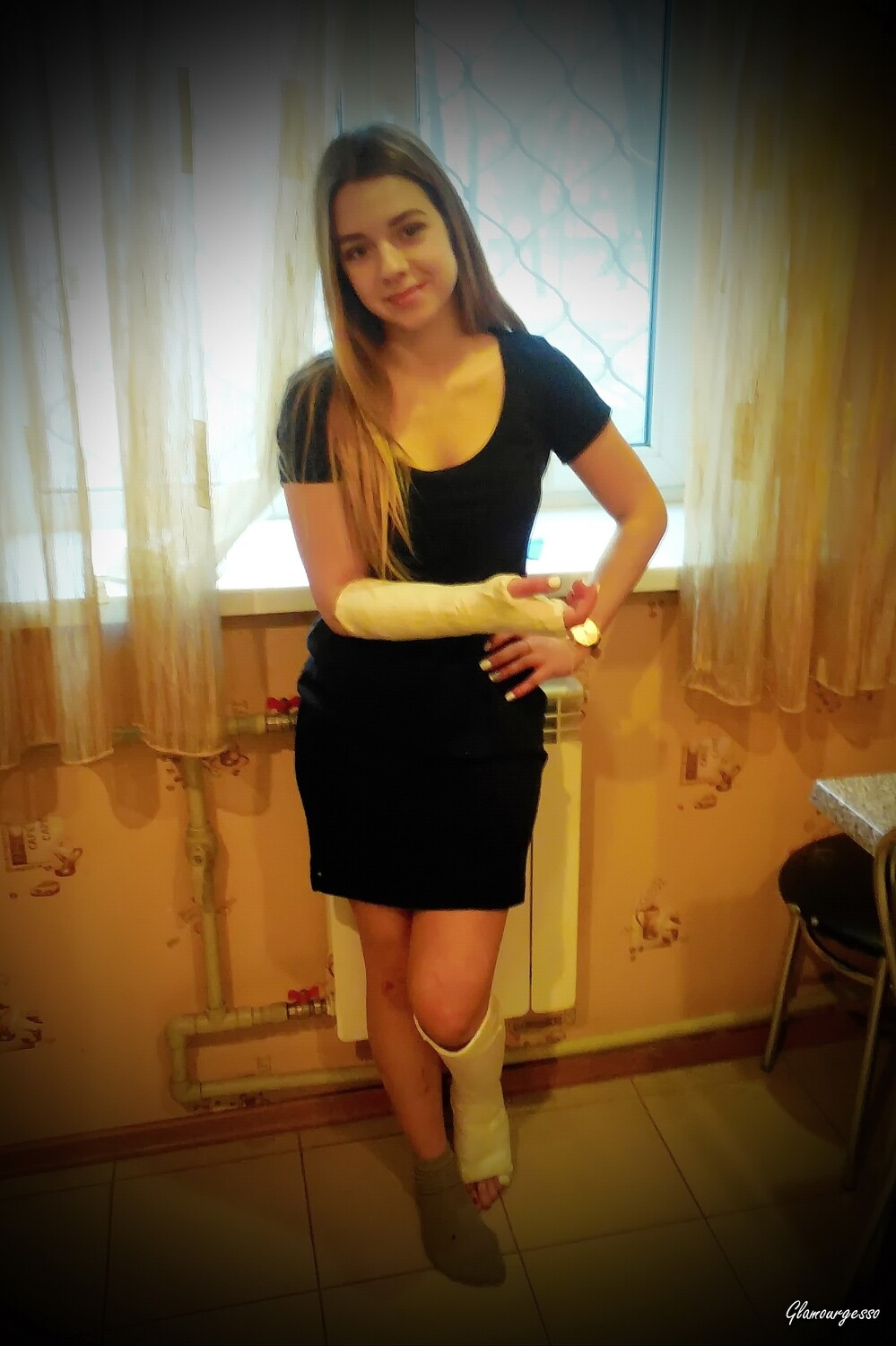 Ukrainian amateur model Marina in armcast and legcast after breaking her right wrist and her left fibula beeing run over by a car on a pedestrian crossing in Kharkiv in May 2015. Sexy and sweet housewife with her casts at home, cleaning rooms, etc.