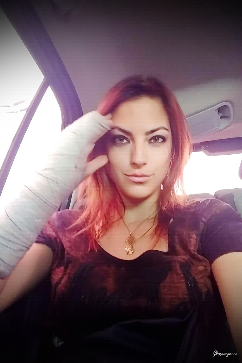 Priscilla MED, Penelope MED: Brasilian professional model Raquel wears her *medical* SAFS after breaking two bones in her right hand hitting a wall rushing out for work in Sao Paulo on March 2018.