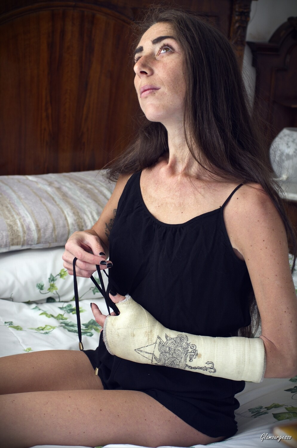 Italian amateur model Penelope shows you her life in her medical SATS, after breaking her left scaphoid dancing in september 2017.  You can see her waking up in sensual nightwear and completely dressing and making up, beeing able to use only one hand