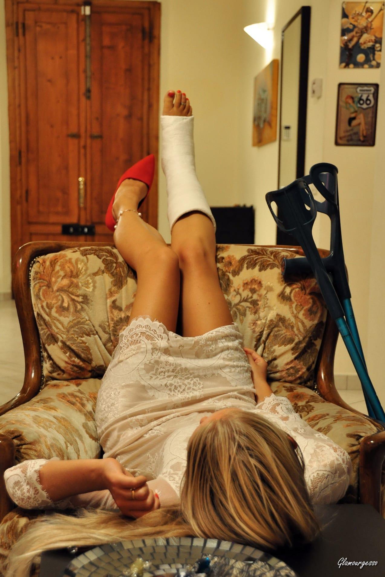 SVITLANA 5 days SLC - Ukrainian professional model Svitlana wears her Long-Term SLC, showing you her attitude on crutches in variuos feminine outfits.
