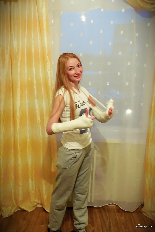 MASHA MEDICAL LATS+SAFS - Ukrainian amateur model Masha wears her *medical* LATS and her *medical* SAFS after breaking her arms in a bike crash in Kharkiv in May 2015.