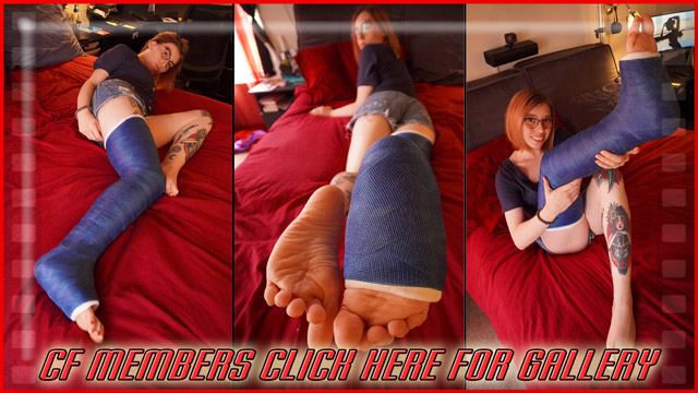 Chase's blue LLC - I went a little picture crazy and took a ton of pics of Chase's cute casted toes and leg in the bedroom. Here's 100 great ones. The rest will be in the bundle on Joe's Clips.