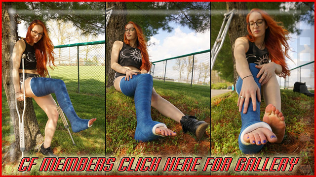 Cathy's Blue LLC Part 2 - This outdoor gallery of Cathy is full of great shots of her long blue casted leg. First she poses her cast on crutches and then sits down by the tree and takes her boot off.
