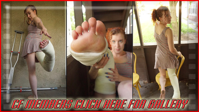 Ellen 90° LLC (with heavily twisted foot) - This is 100 beautiful shots of Ellen taken after lots of crutching around a very big store in a 90° LLC. Also, Ellen has an OnlyFans page if you'd like to check that out!