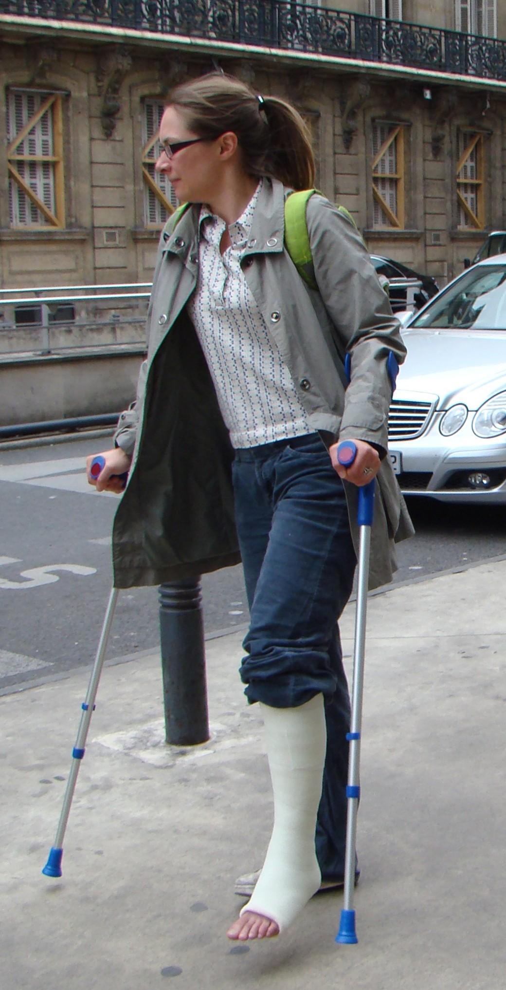 Woman with short leg fibre cast and crutches
