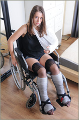 Ivonne - DSLC + LAC - Ivone with both legs and one arm plastered is now wheelchair bound (50 images in set )