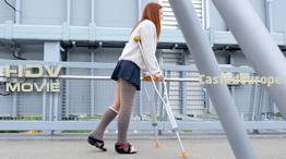 Misha LLC & SLC - both legs plastered (HD Video)