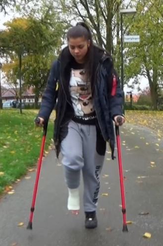 Magic SLC #3 - Magic jumps out of the car on one leg, She takes her crutches and starts walking on the walkway towards the bus stop.  Her right leg is in a white SLC and after a while she arrives at stairs that she has to jump up...