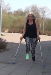 Bella Sprain - With a bandage on her right foot, Bella jumps around with crutches near a school. In the heat, she gently puts her injured foot over the other and rests for a short while before crutching on.