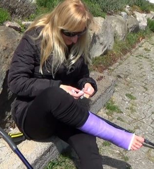Stefanie SLC - Blood warning! An accident happened when Stefanie slipped on the gravel with her crutches. Her little toes are damaged and she has got band-aid which she now puts around her toes. So not only with a casted brooken leg, now she has...
