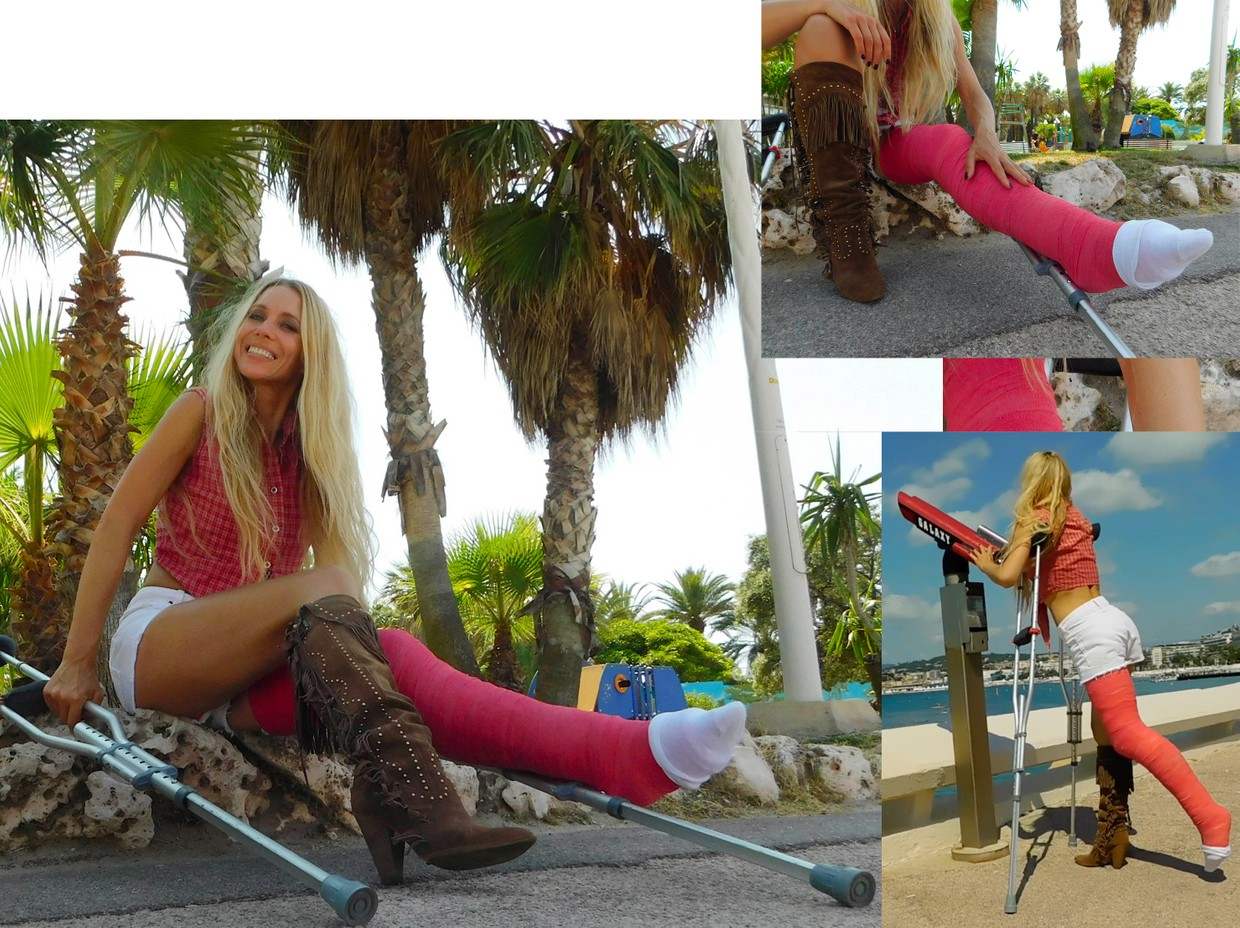 Castlinda LLC - Jolie Modling - Linda crutching in the city of Cannes - her plaster full leg cast on her left leg and a cowboy boot on her right leg. This time the plastercast ist wrapped in red bandages.