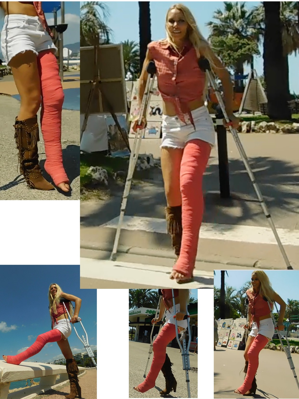 CastLinda LLC #89 - Linda on crutches with a longleg cast on her left leg - wrapped with red bandages..