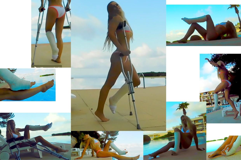 Castlinda - Jolie Modling - in Cannes, while wearing a slightly tip-toed legcast on her leg.