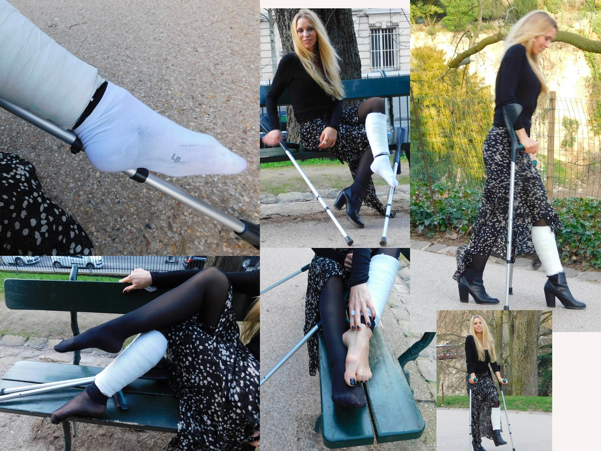 castlinda with SCLC cast and crutches (88 pictures, 12min video)