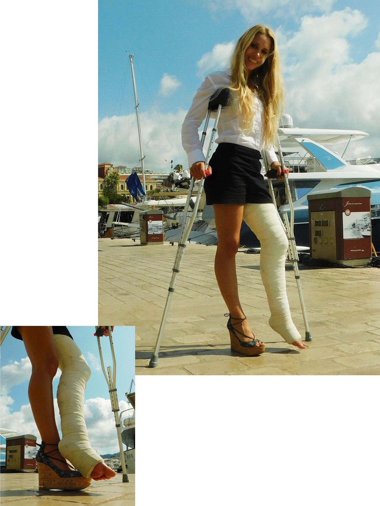Castlinda LLC - Jolie Modling - Linda crutching in the city of Cannes - with a massive plaster longleg cast on her left leg and a sexy wedge sandal on her right foot.