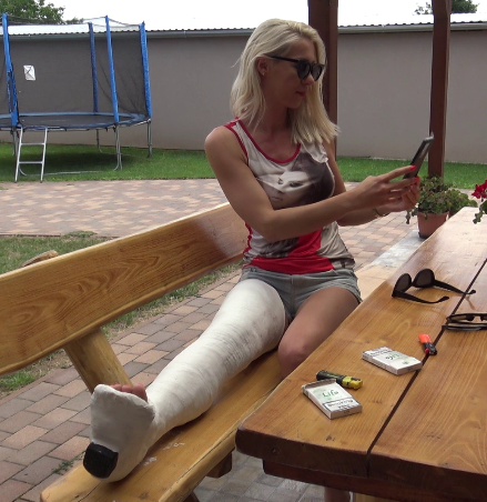 Roxxy LLC - on the terrace with her big casted leg