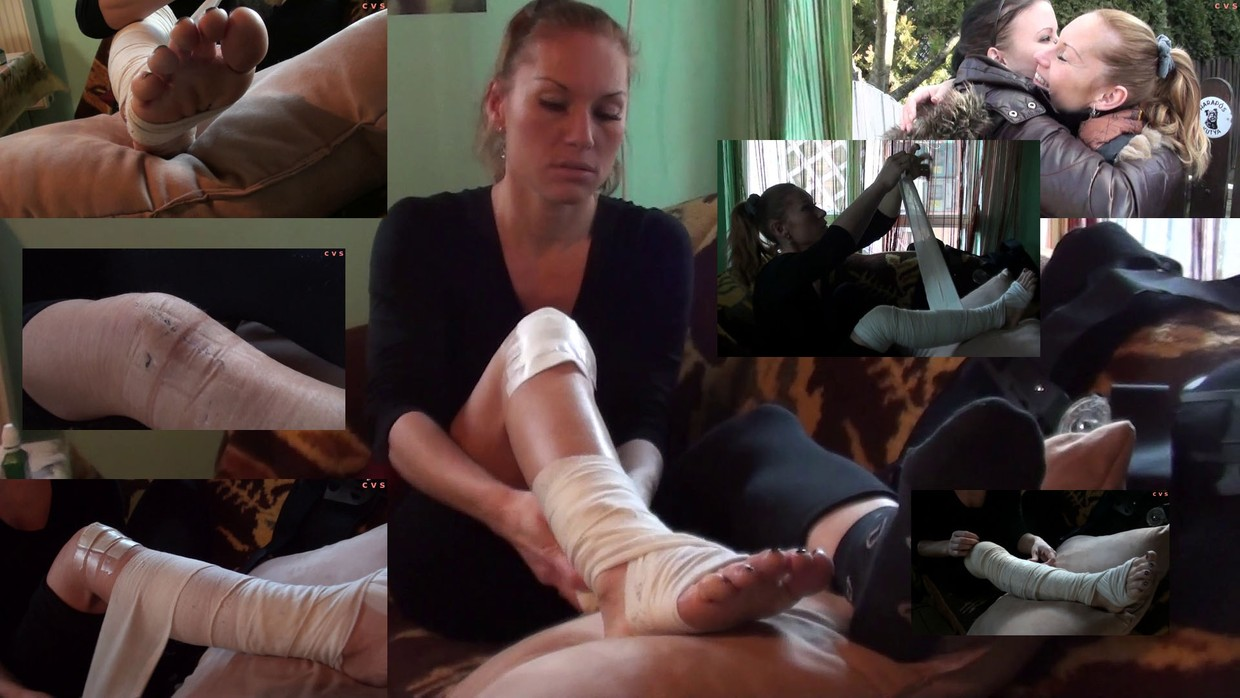 Christa Real Knee Injury 1+2 - Christa had an operation, and we got the chance to meet her at her home. We can make her an interview about her accident, and what happened after. She show us her wound, and drive us around in her apartment down and...