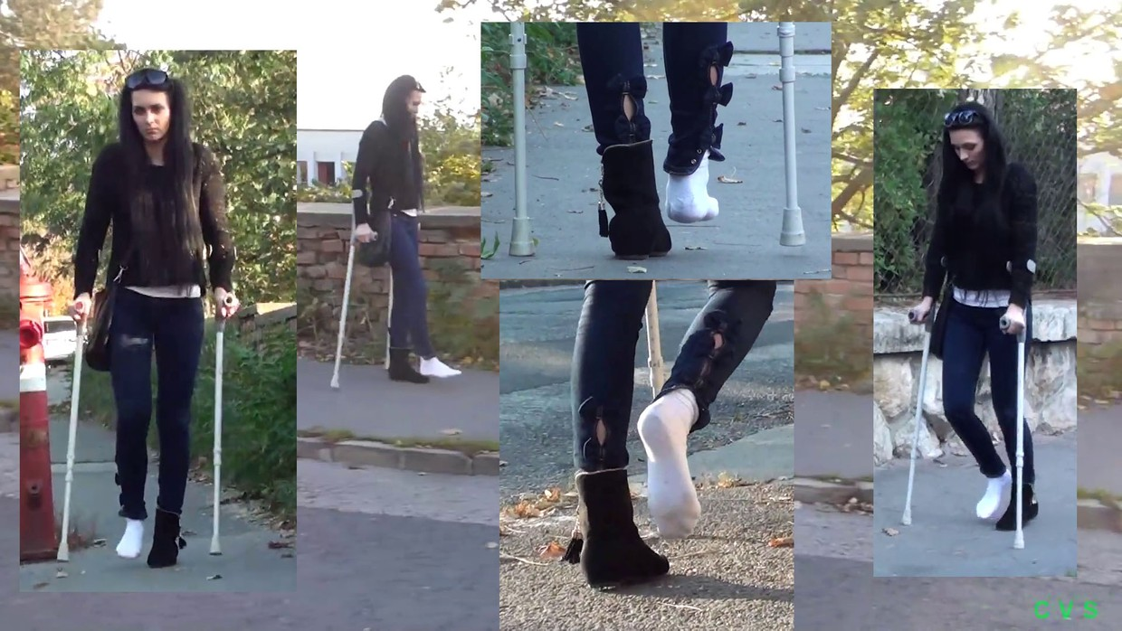 Jessica - Dislocated Ankle