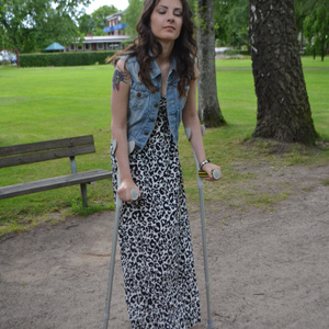 Ranna SLC 1-1 short leg cast and crutches