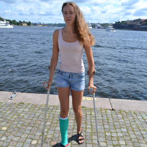 Tounghy green short leg cast on crutches...