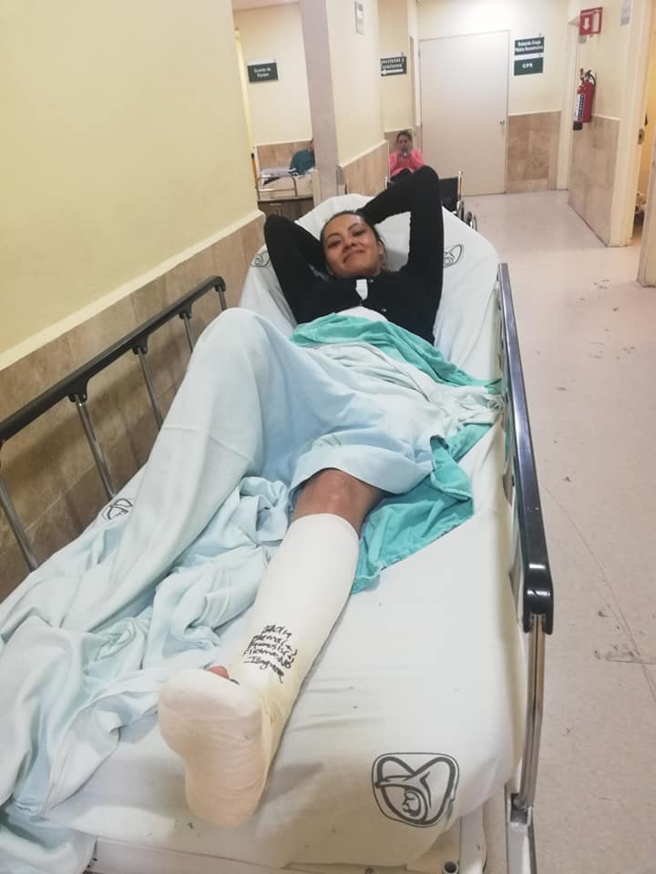 2.300+ pics & short clips of women struggling with casted and braced limbs...