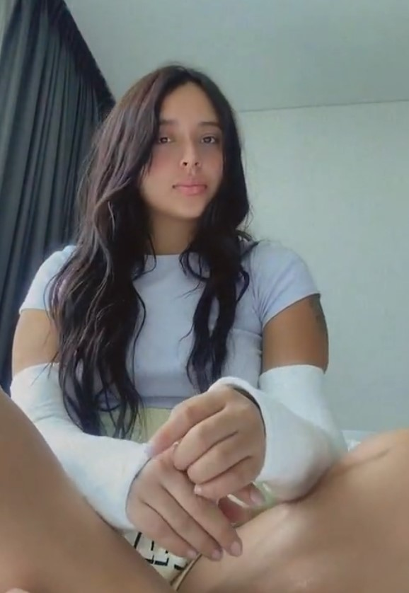 FREE PREVIEW's @ instagram: Juliana with both arms in casts...