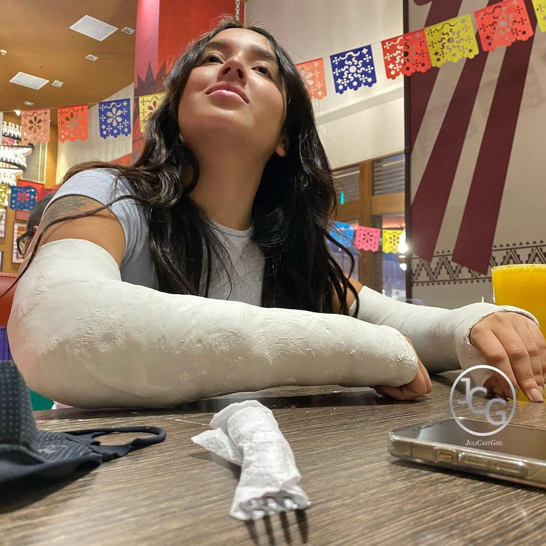Juliana in the mall - with both arms casted.