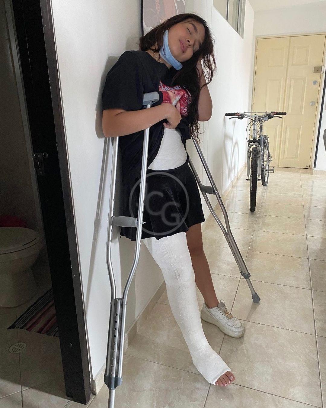 Juliana in Hip Spica on crutches.