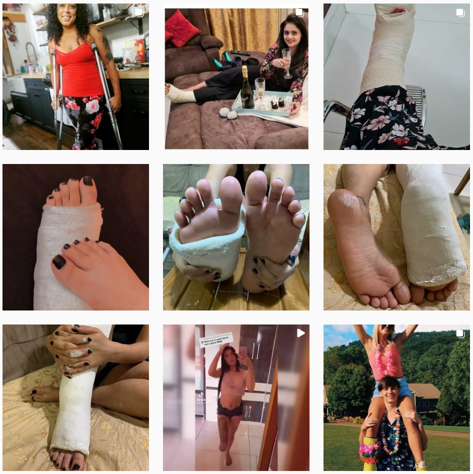 New finds showing beauties in orthopedic casts...