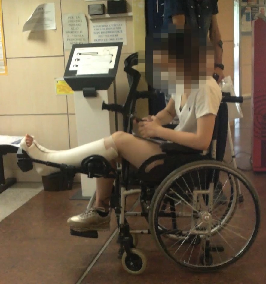 Girl with white short leg cast (splint) in wheelchair. This beautiful girl broke her ankle.