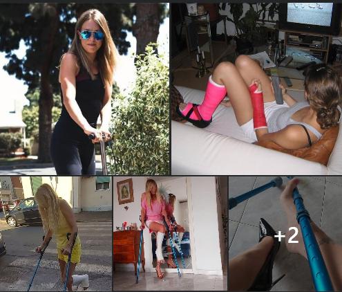 women in leg casts